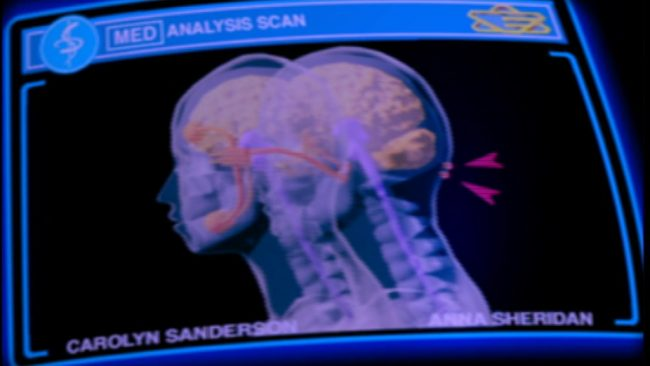 Röntgenbild von Anna